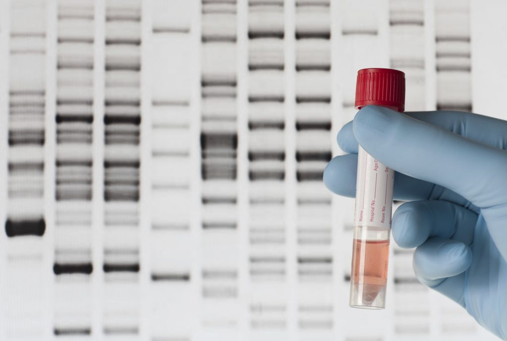 DNA Test During
